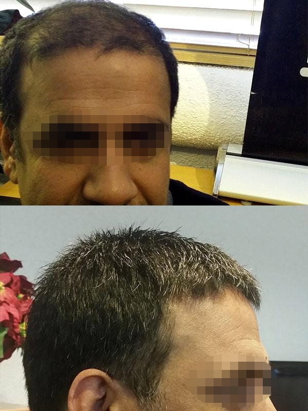 Ultragraft Testimonials Male 01