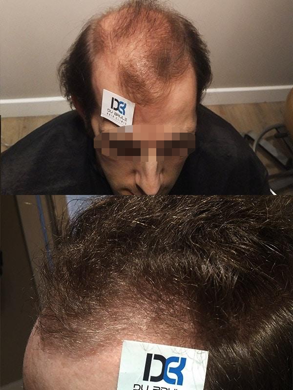 Ultragraft Testimonials Male 03