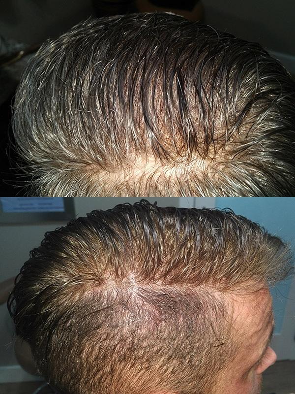 Ultragraft Testimonials Male 06