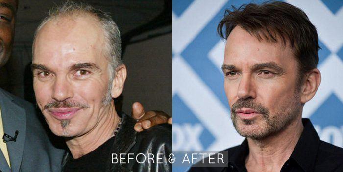 Billy Bob Thornton Hair Restoration