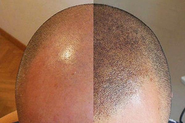 Fur Micropigmentation Scalp Tattooing