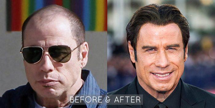John Travolta Hair Restoration