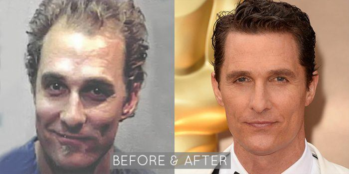 Matthew McConaughey Hair Restoration