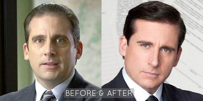 Steve Carell Hair Restoration